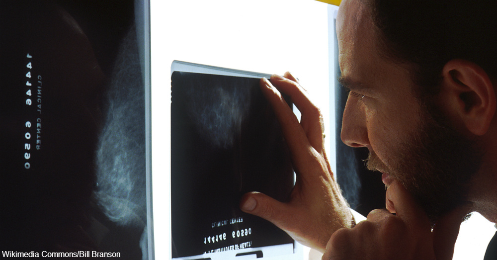 Doctor_viewing_mammogram