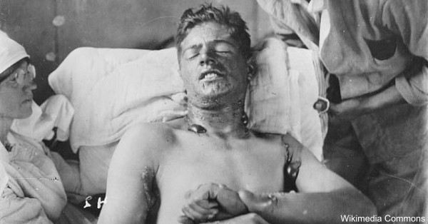 Mustard gas burns the skin and lungs and has been linked to other serious physical conditions.