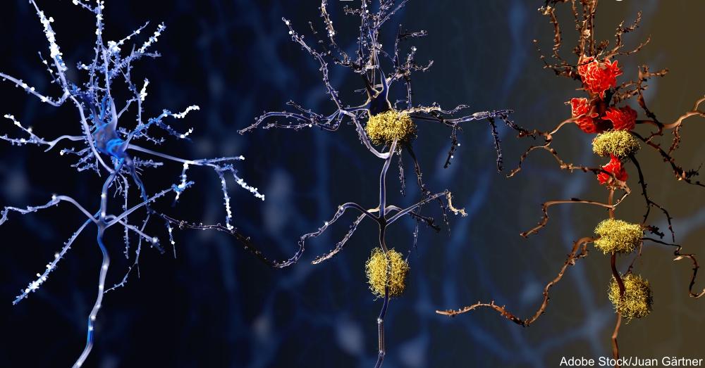 3 Phasen der Alzheimer-Krankheit: 1. Gesundes Neuron, 2. Neuron mit Amyloid-Plaques (gelb), 3. Totes Neuron wird Microglia-Zellen (rot) zersetzt.