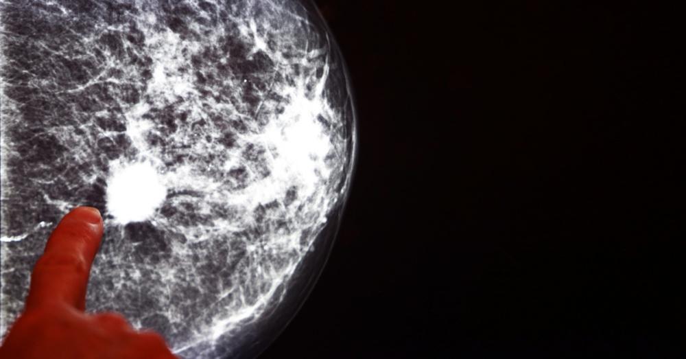 angela-mammogram1_shutterstock_196939100