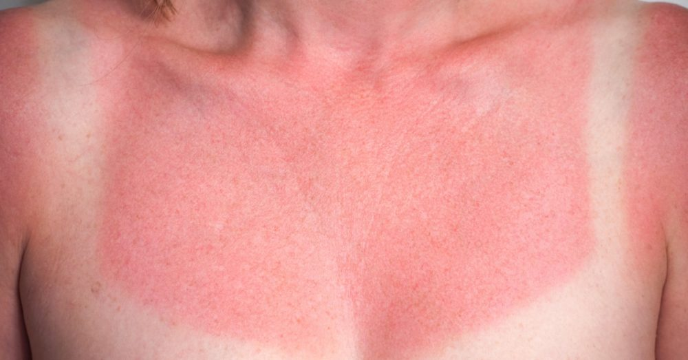 sunburned-chest_shutterstock_159200453