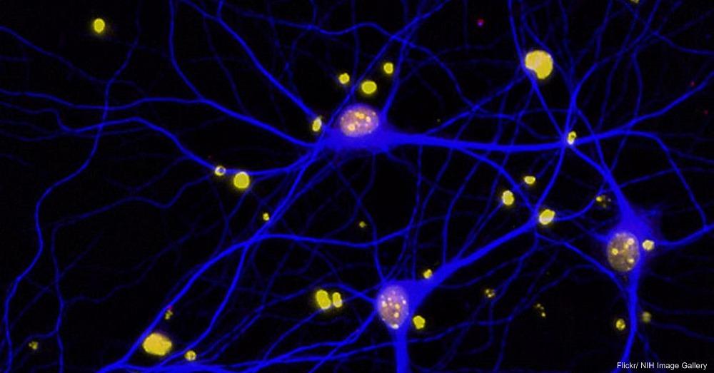 Mouse Brain Neurons