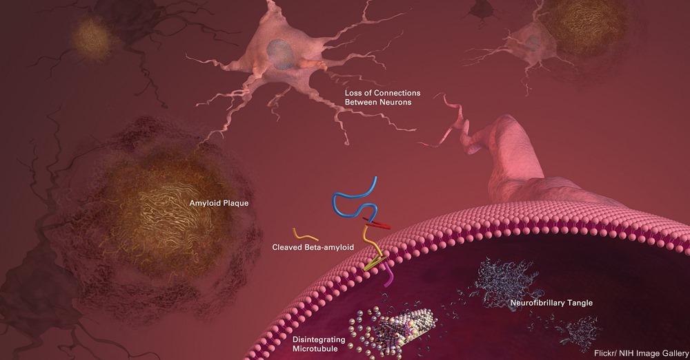 Alzheimer's Brain Diagram