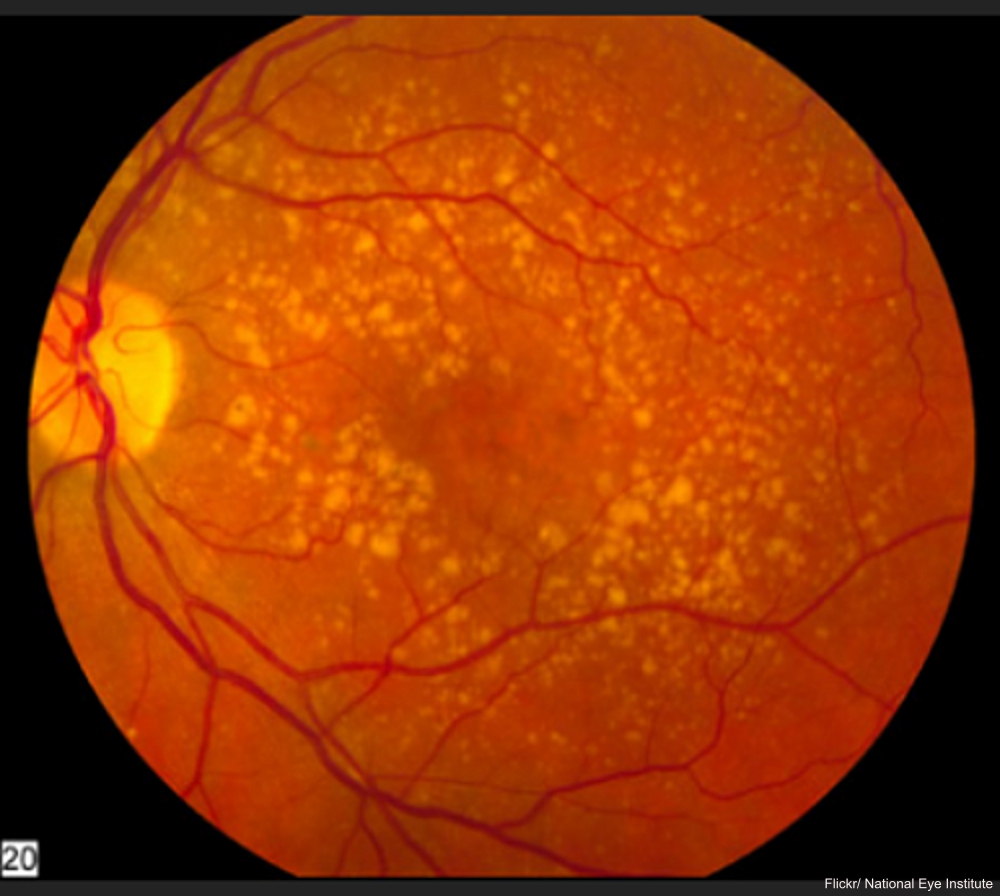 Image of Macular Degeneration National Eye Institute