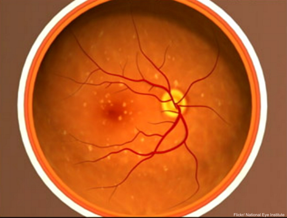 Macular Degeneration National Eye Institute