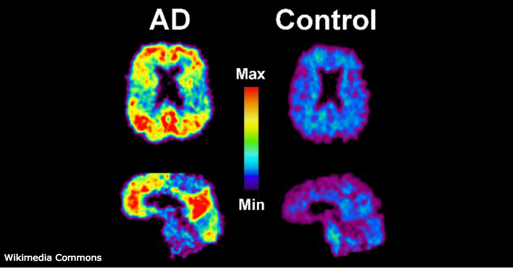 Scans showing amyloid plaque in Alzheimer's Disease and non AD-affected brains