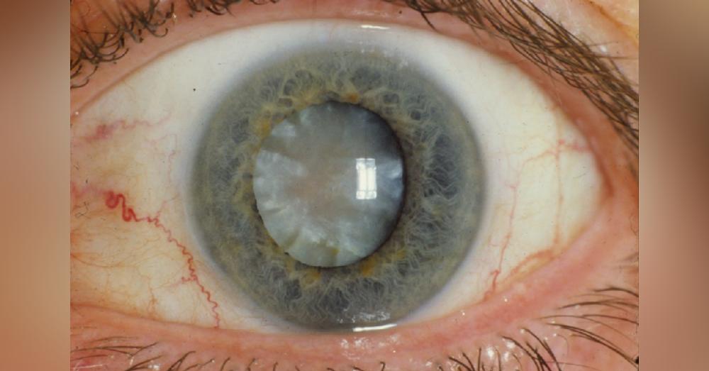 Cataracts1