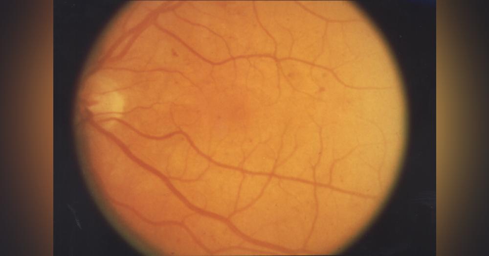 Retinopathy1A_1000x523