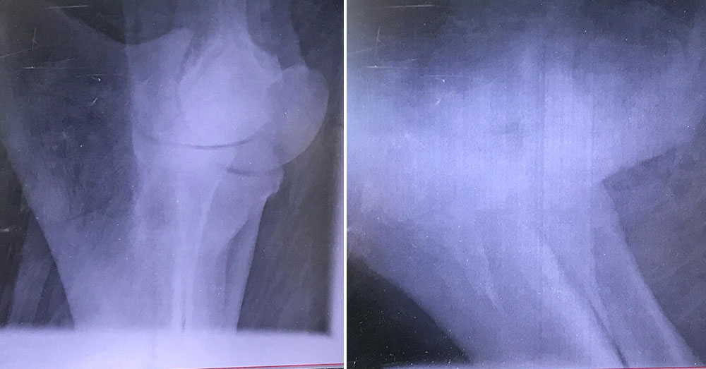 Source: Lek Chailert Poon Mee's normal leg bone (left), and broken leg bone (right).