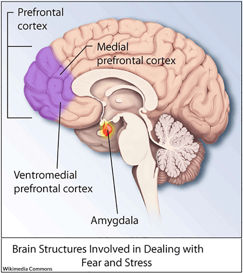 PTSD affects the brain in a number of ways, mentally and physically.